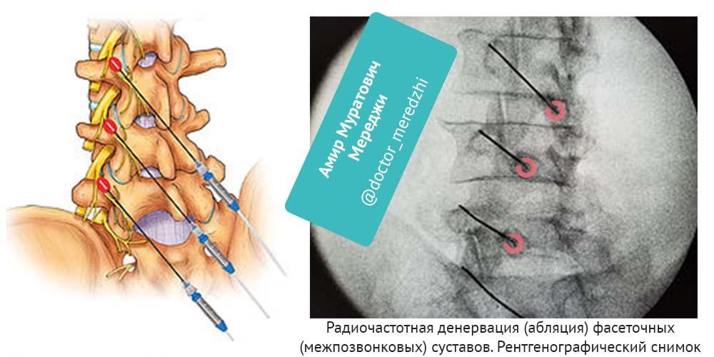 Радиочастотная денервация фасеточных суставов.jpg